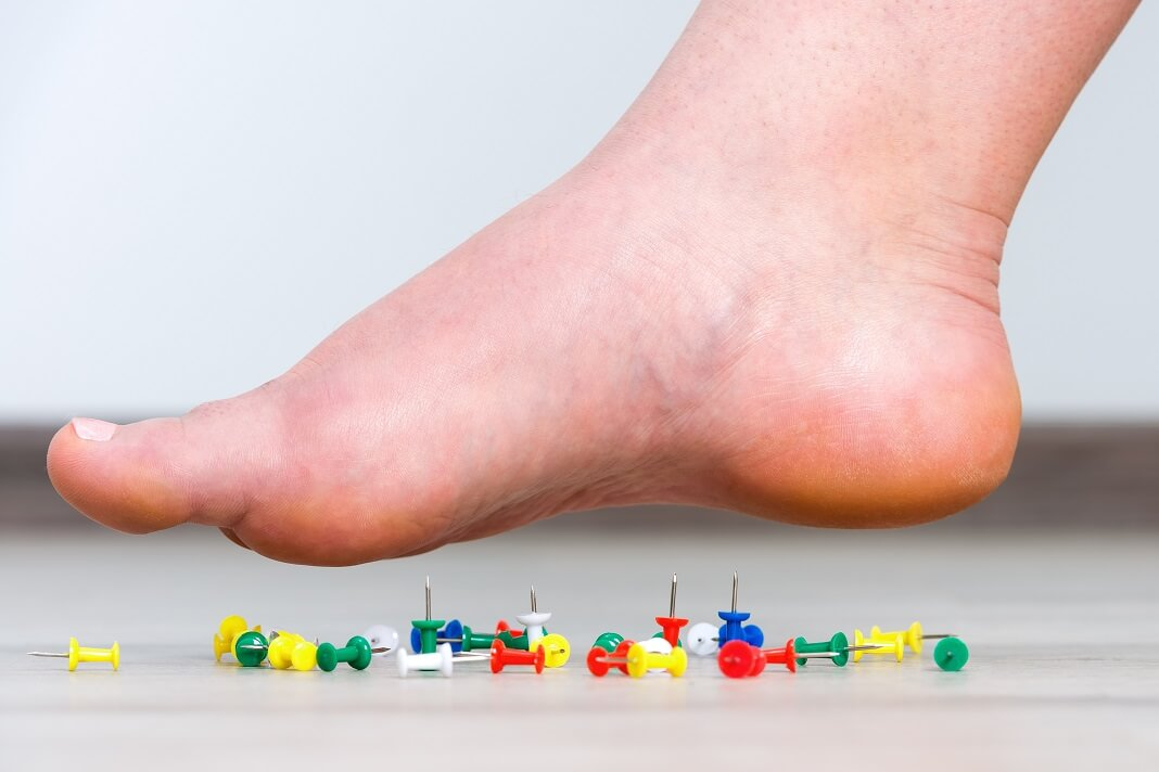 Acupuncture For Neuropathy : Benefits, How It Works And ...