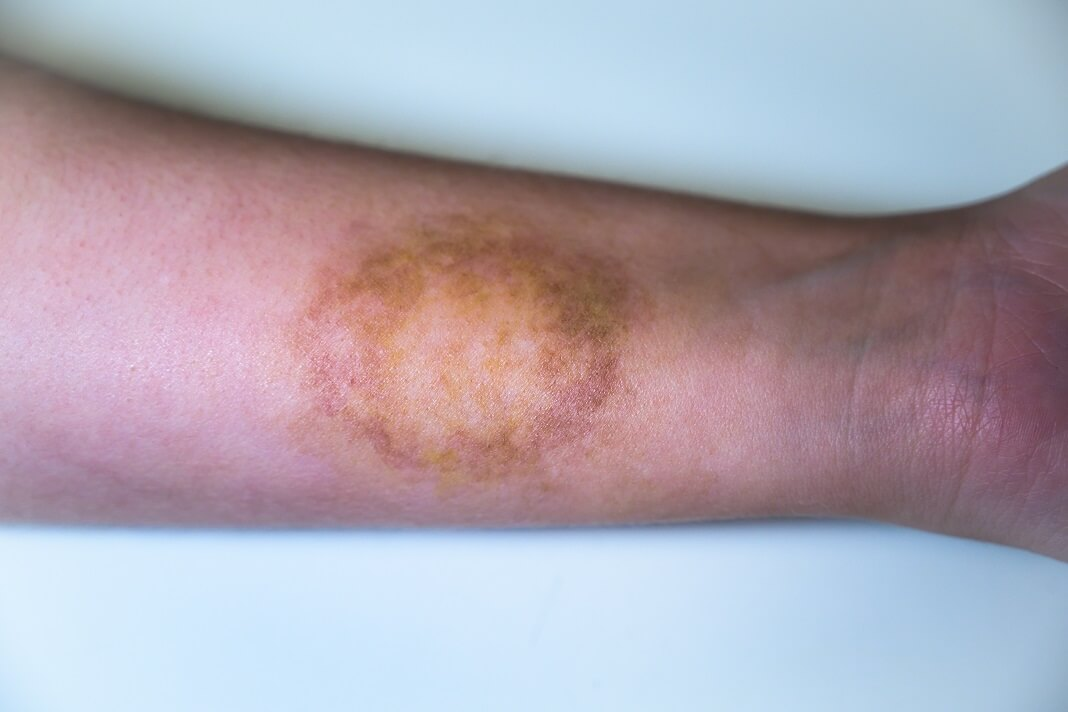 Bleach For Ringworm Benefits Side Effects How To Cure