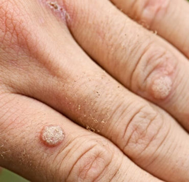 cryotherapy for warts