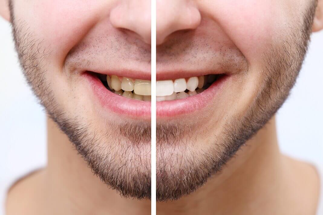 Charcoal for teeth whitening
