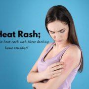 How To Cure Heat Rash