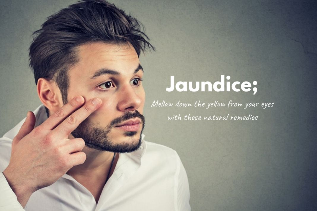 how to treat jaundice