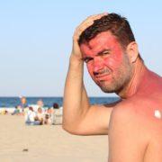 white vinegar for sunburn