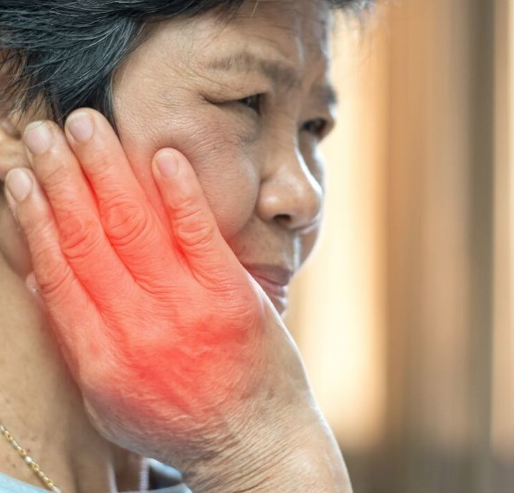 Physiotherapy for TMJ