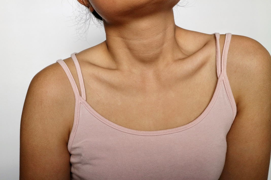 home remedies for dark neck